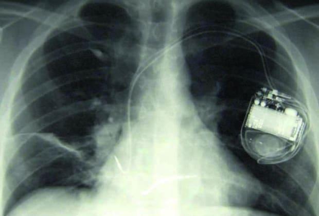 Desfibrilador Cardioversor Implantable Precio